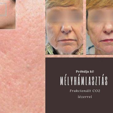 Limfödéma - nyirok keringési zavar - Trombózis- és Hematológiai Központ