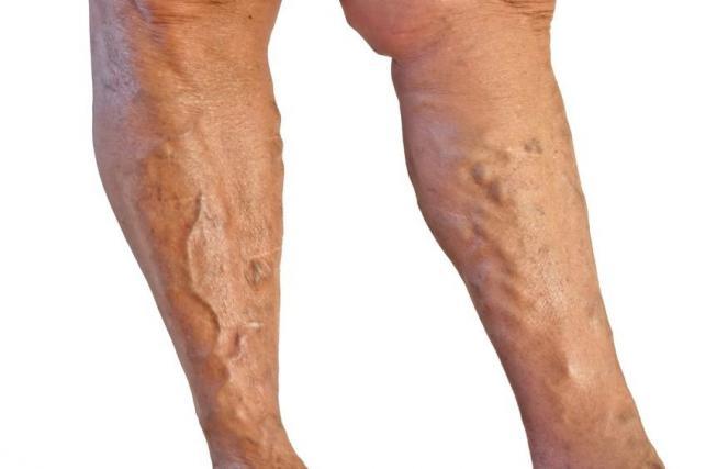 lapos láb visszér