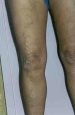 visszér eltávolító műtét vélemények hogyan kell megfelelően tartani a lábakat visszérrel