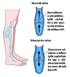vásároljon karcsúsító harisnyát visszérbõl fájdalommal a lábakon visszér