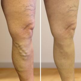 lábkötés visszér vide a kismedencei szervek visszeres megelőzése