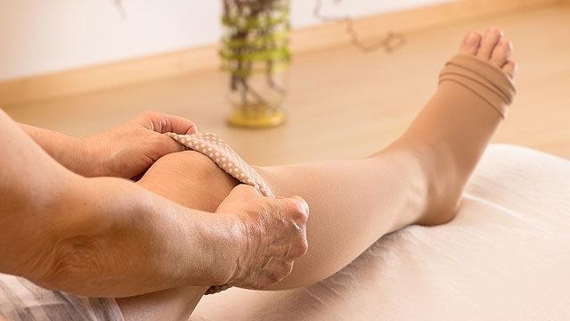 gyakorlatok visszeres láb ödéma esetén