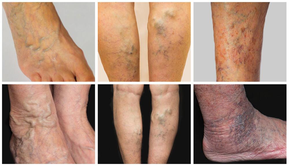 A bőr vörössége a varikózisban