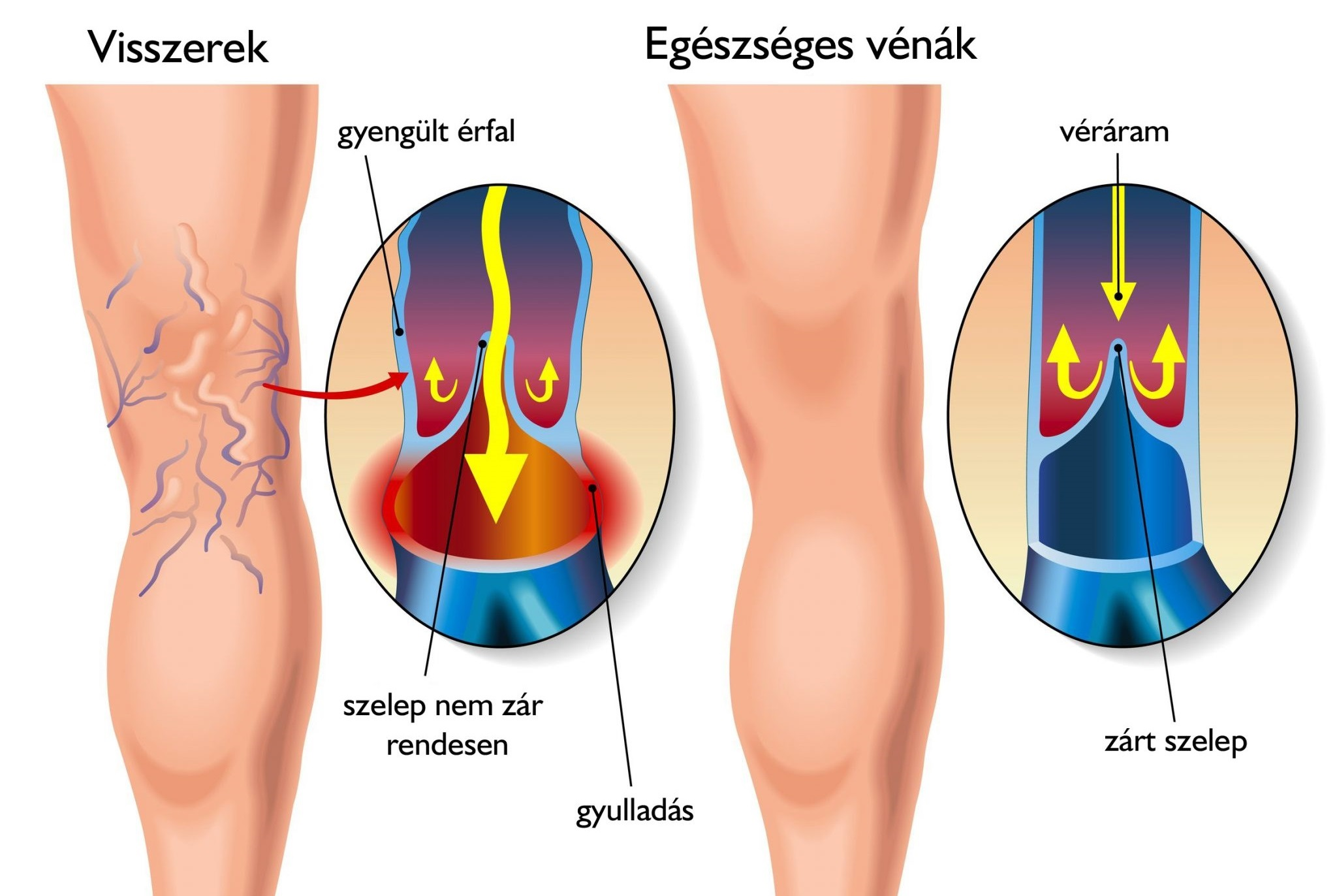 visszér és műtét térdig érő lábak visszér