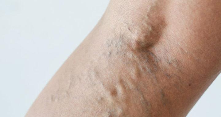 retikuláris visszér és gyógyszeres kezelés