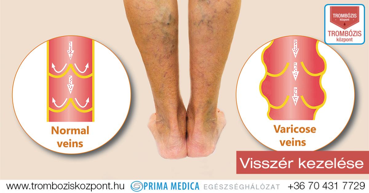 visszér a lábak hatékony kezelése orvosi előírások a visszér kezelésére