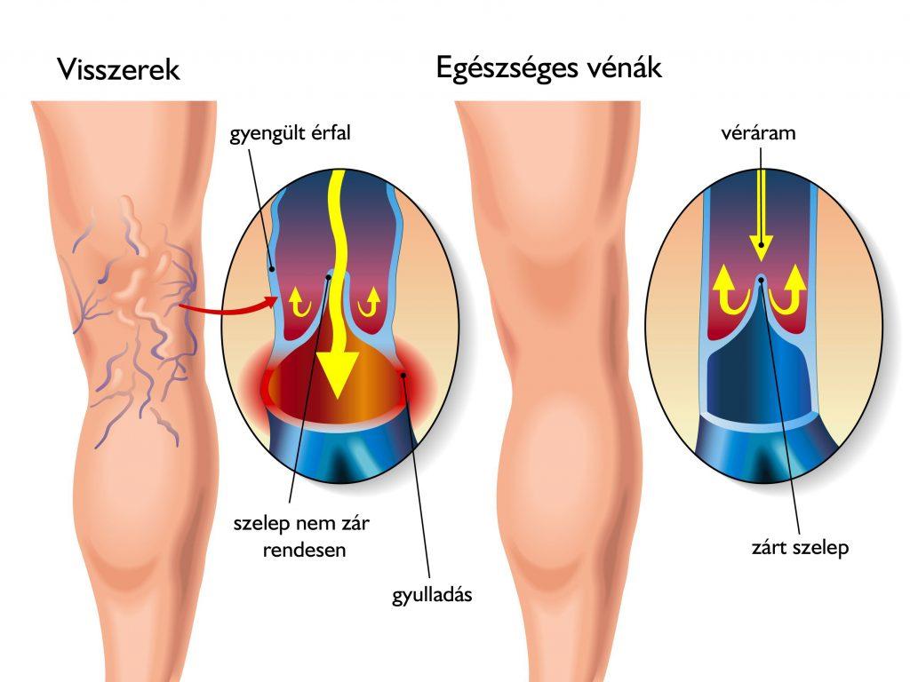 a visszér 6 nap múlva eltűnik láb visszér műtét műtét után