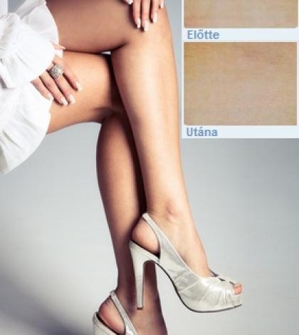 visszér a lábakon kezelés műtét nélkül visszér érelmeszesedés