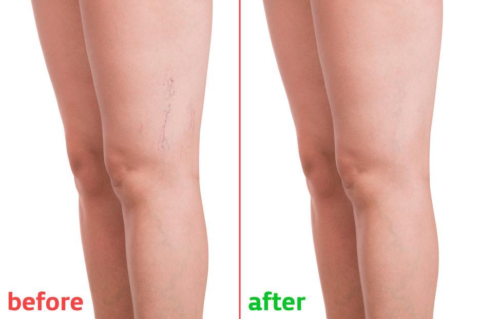 hogy megakadályozzák a visszerek visszafogását a lábakon