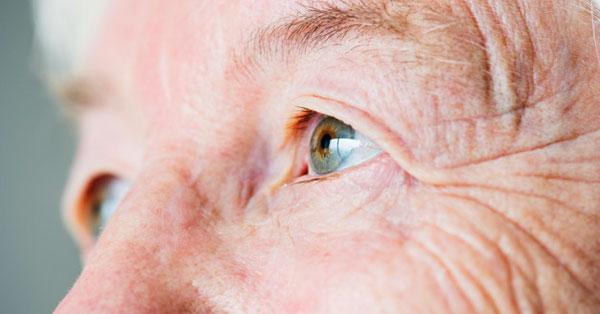 a varikózisban szenvedő szem tünete