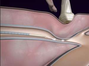 visszérműtét van fekélyek az alsó végtagok visszérrel fotó