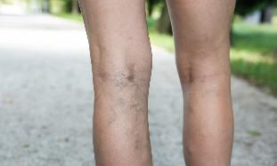 csalán a lábak visszérrel veszélyes a retikuláris visszér?