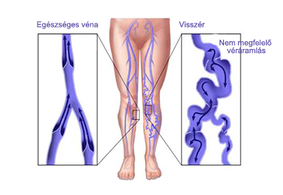 a lábakon visszér népi gyógymód logest és visszér