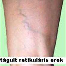 vélemények a lábak visszér alternatív kezeléséről ogulov a visszérről video