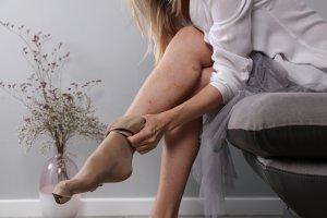 kísérő visszér a lábak varikózisai a műtét előtt