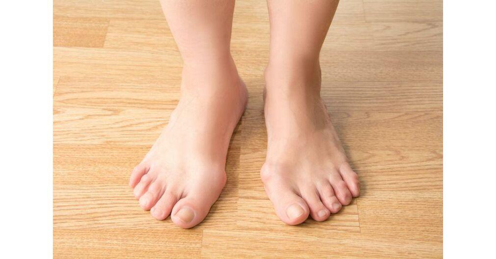 visszérkiütés a lábakon szülés visszérrel a lábán