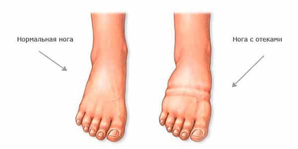 távolítsa el a duzzanatot a lábról visszérrel visszér kezelése karagandában