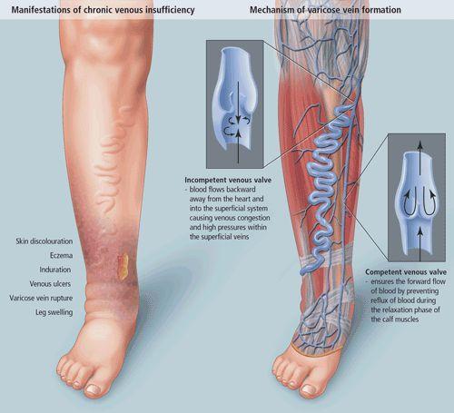 hogyan kezeli a visszeres lábfekélyeket gyógyszer visszér kezelés