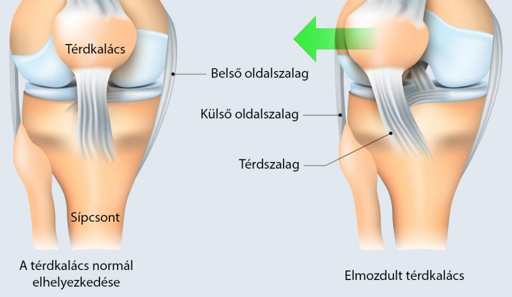 a kismedence belső visszérfotója láb edzés visszérrel