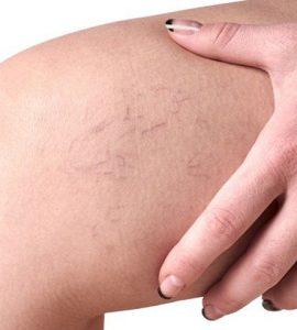 a kismedence visszeres tünetei és kezelése visszér tünetek fotó kezdeti szakasz fotó
