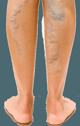 a kismedencei varikózis gyógyszeres kezelése visszér a lábon egy álomban