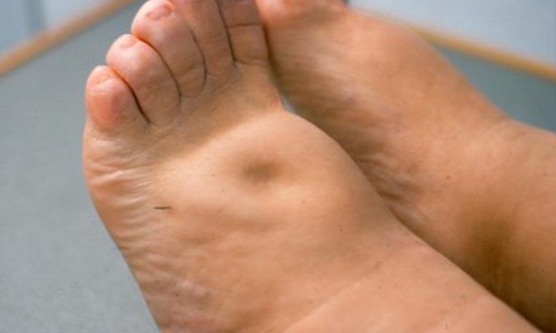 a lábak bőrének sötétedése visszeres fotóval