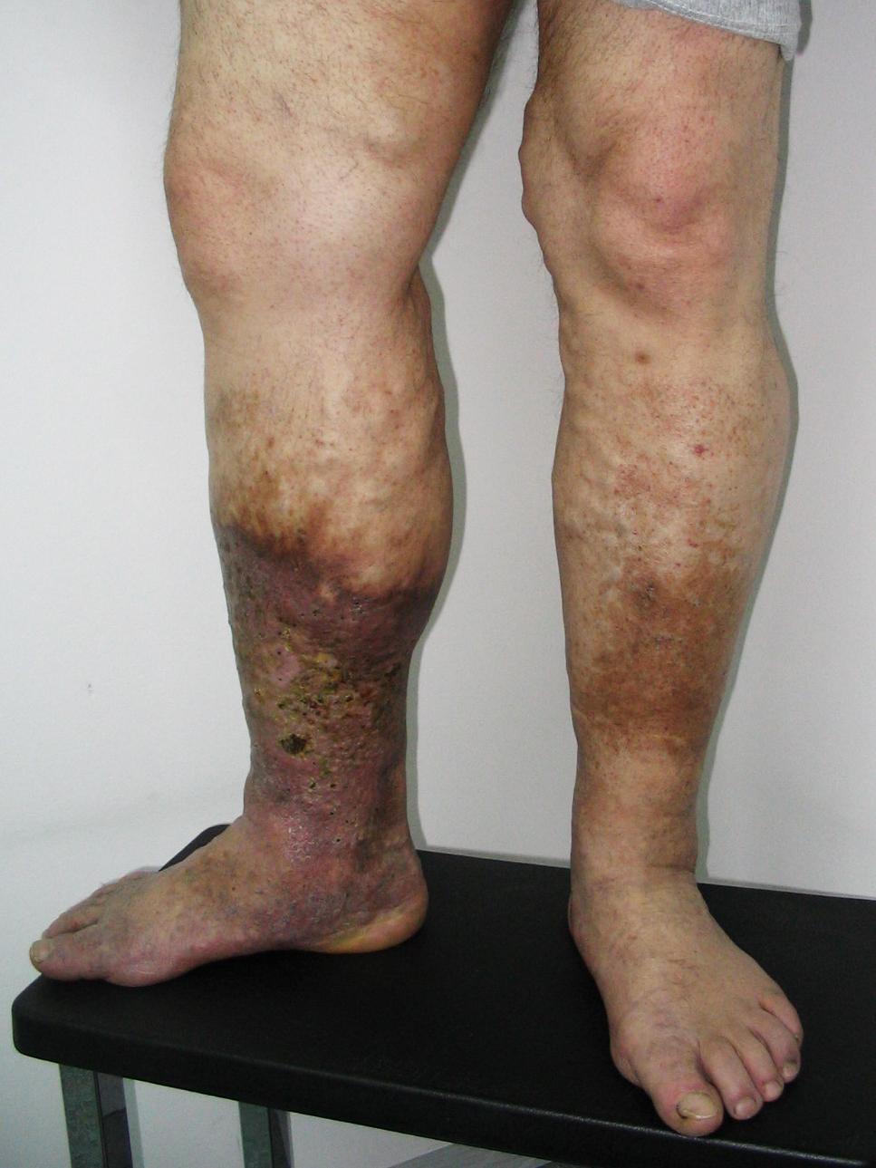a lábak ekcémája a visszér fotó forró injekciók visszerekből