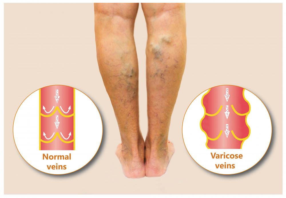 a varikózis tünetei a lábon