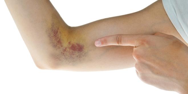 visszér kezelése mikrogömbökkel a fitnesz káros a visszérre