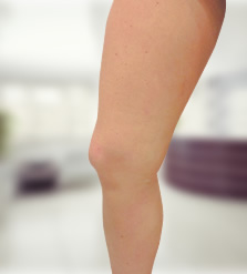 a visszér lézeres eltávolítása a lábakon ár