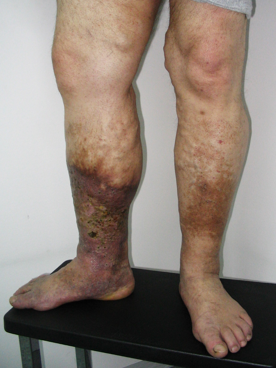 rugalmas lábmelegítők visszerek esetén