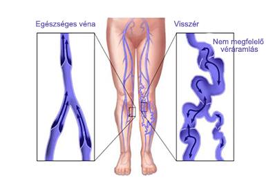 az alsó végtagok varikózisának kezelése piócákkal
