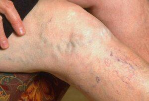 piócakezelési vélemények a lábak visszértágulatáról visszér giacomini