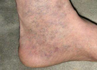 sebek visszér kezelés után kompressziós harisnya az alsó végtagok varikózisához