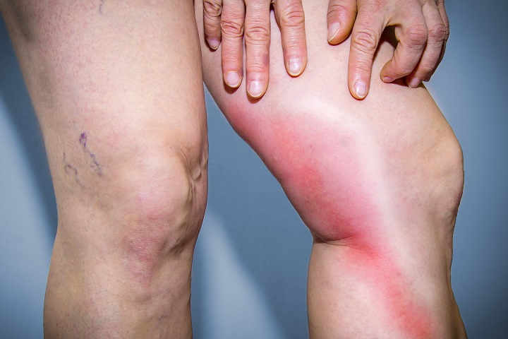 visszér és a láb fájdalma visszér kezelés ausztria