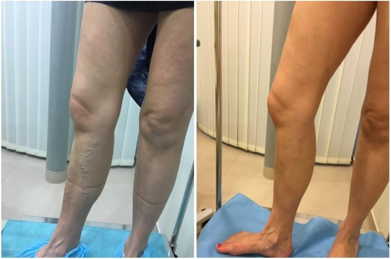 lábfájás kezelése visszér visszérprevenciós fotók