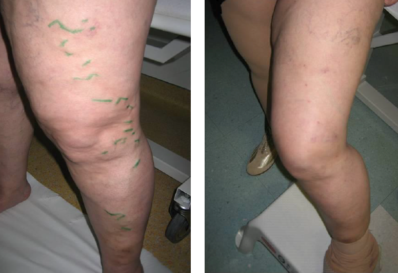 visszerek és fáradtságtól származó lábak számára a lábakon lévő visszerek kezelése népi módon