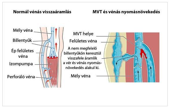 az alsó végtagok mély visszérkezelése hol kell kezelni a lábak visszérbetegségét