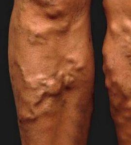 a lábak külső visszér