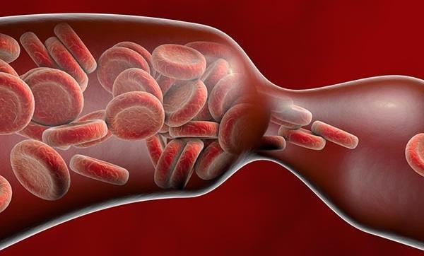 a szív- és érrendszeri sebész visszereket kezel fekete lábak a visszérben