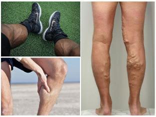 belső visszér a lábán visszér a lábakban, a kezdeti szakasz