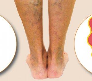 belső visszér a lábán visszér műtét mi az ára