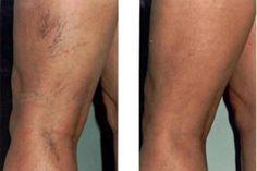 borókaolaj visszér ellen a láb erek erősítése visszeres
