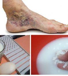 Mikulin a visszér kezeléséről fotó visszérrel és kezelésükkel