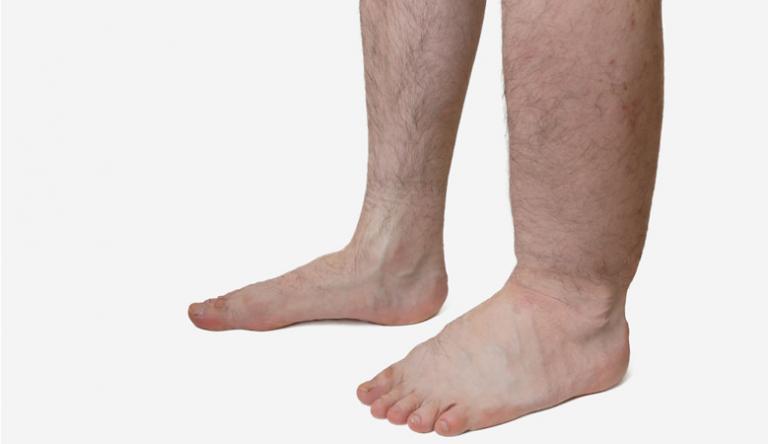 a láb deformitása visszeres