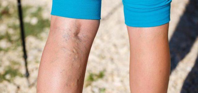Hogyan lehet kezelni a medencei varikozeket?
