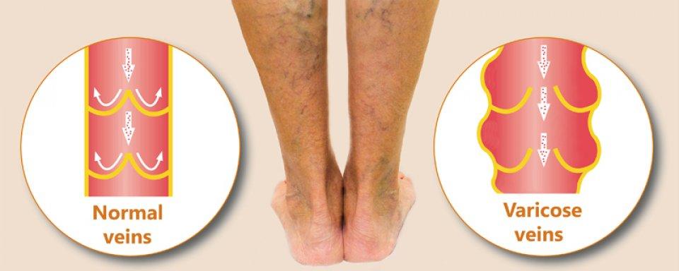visszérgyulladás a láb kezelésén
