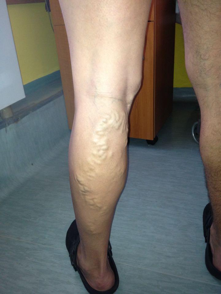 visszér és műtét varikózis az egyik lábán egy nőnél