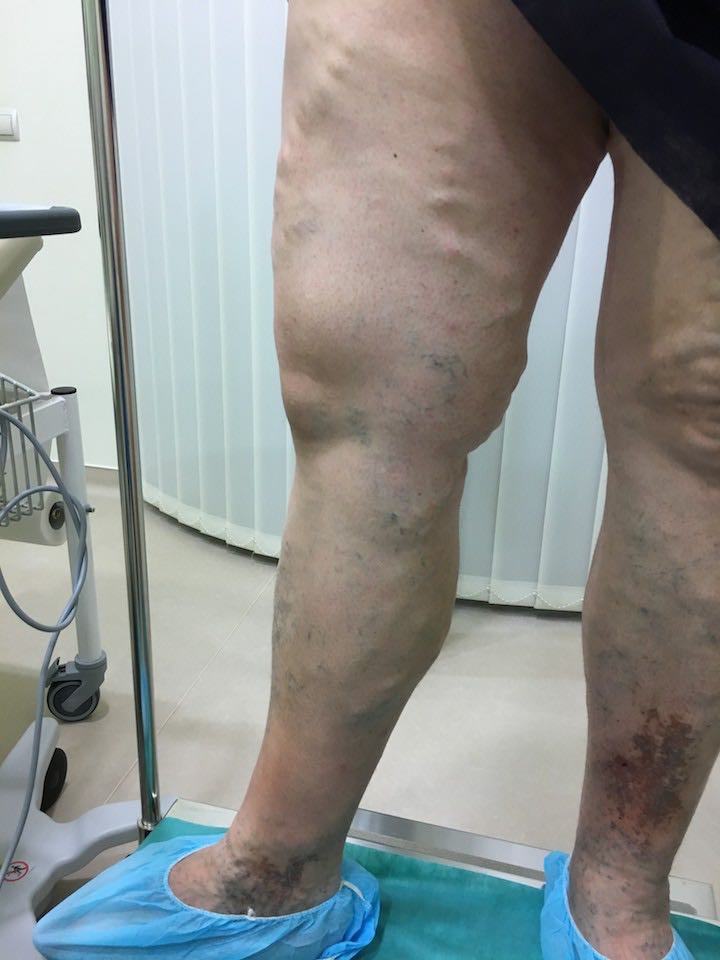 fotó a lábakon lévő visszérműtét után összeesküvés visszeres szerdán
