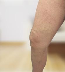 műtét a visszerek visszaszorítására a lábakon